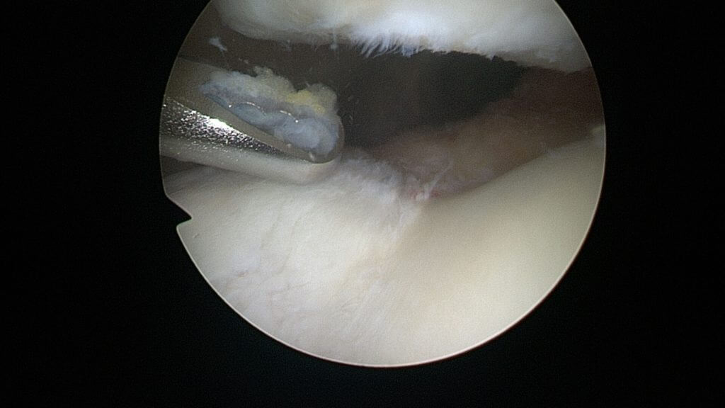 Blick ins Knie – Foto: Park-Klinik Manhagen, Dr. Jan Hennings